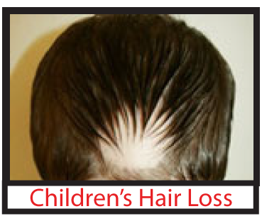 Children's Hair Loss
